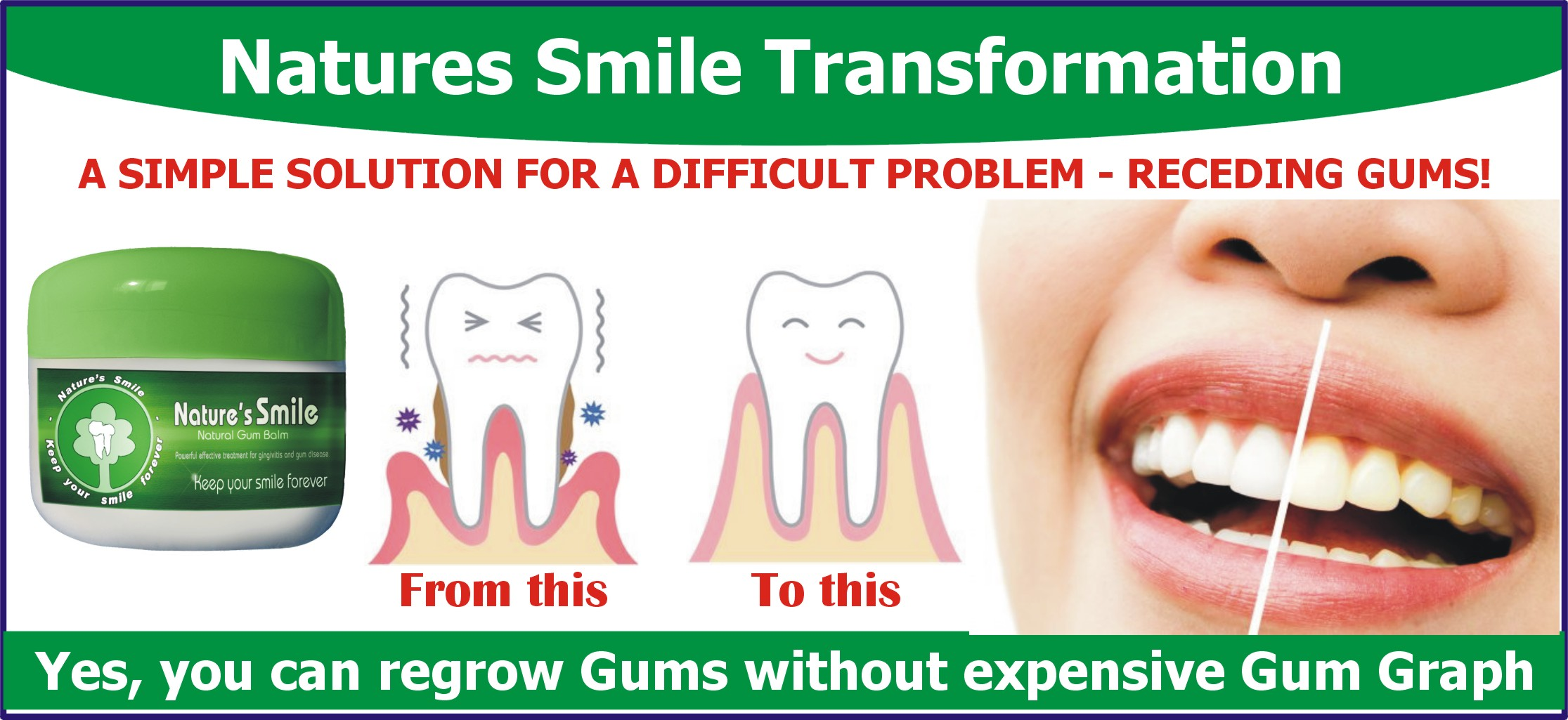 Regrow Receding Gums Without Surgery From Getting Worse